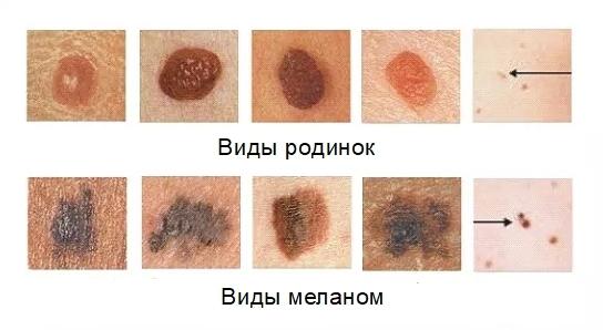 Как лечится меланома с метастазами — доступные опции для 3 и 4 стадий заболевания, включая клинические исследования