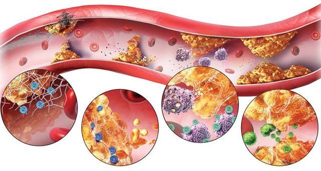 Холестерин ЛПВП понижен: диагностика, причины, симптомы и лечение