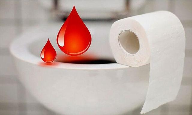 О чем говорит кровь в кале: диагностика заболеваний, их лечение, возможные последствия
