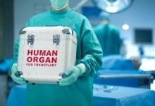 Как складывается жизнь после пересадки почки и причины отторжения органа
