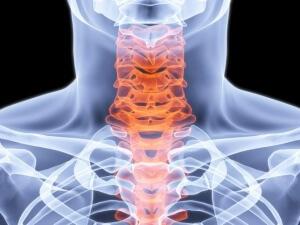 Рентгенография шейного отдела позвоночника: назначение, подготовка, процедура и противопоказания