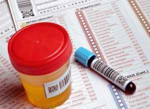 Диагностика сахарного диабета 1-го типа — какие анализы необходимо сдать