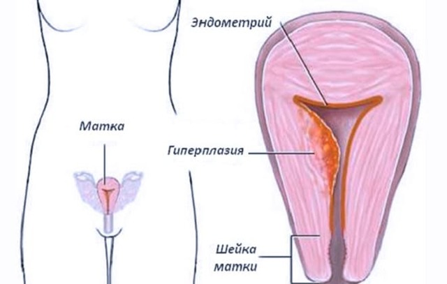 Простая железистая гиперплазия эндометрия: признаки, формы и методы лечения
