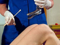 Как проводится и какими могут быть результаты биопсии шейки матки?