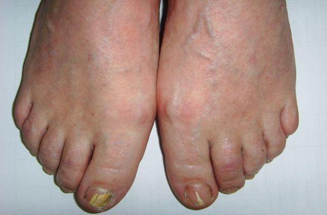 Дерматофитный онихомикоз: как диагностируется и лечится грибок ногтей