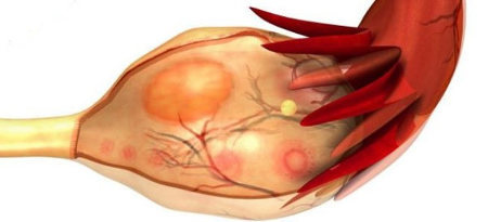 Киста желтого тела правого яичника: причины развития, признаки и методика лечения патологии