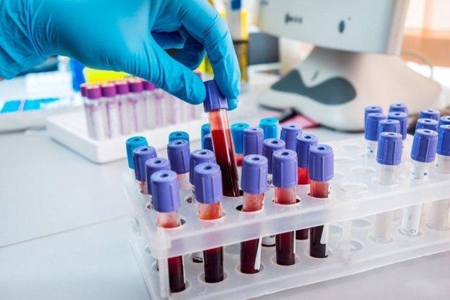 Антитела класса igg к краснухе: значение, диагностика и норма в крови