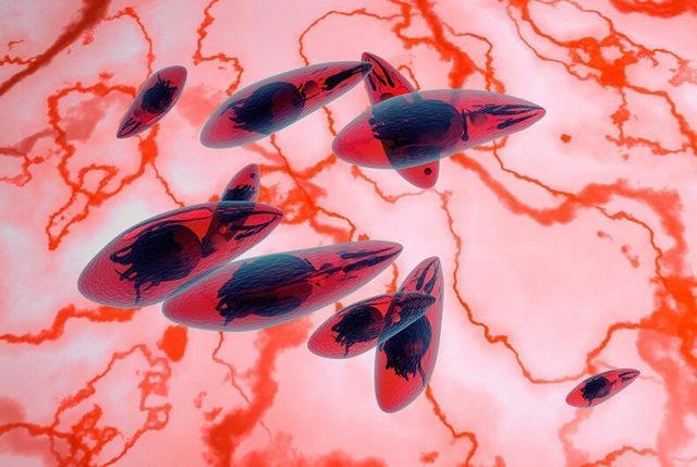 Токсоплазмоз гонди: заражение, симптомы, лечение и профилактика заболевания