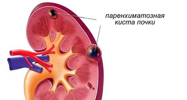 Признаки паренхиматозной кисты правой почки, медикаментозное, народное и хирургическое лечение