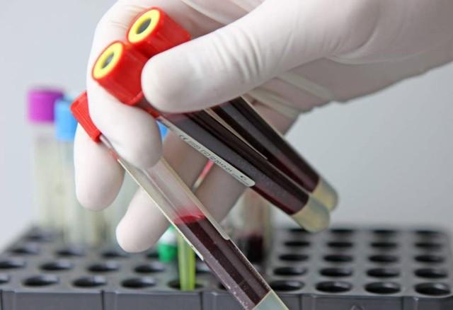 Лейкоциты (wbc) - как правильно сдавать кровь на анализ и какая их норма?