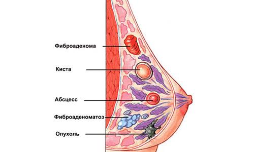 Гипоэхогенное образование в печени: что это, причины образования, симптомы и лечение