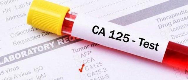 СА 125 онкомаркер яичников: подготовка к анализу, норма и возможные отклонения