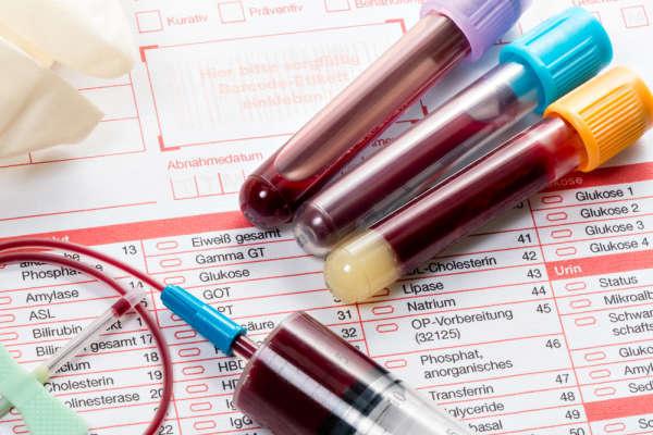 Как правильно сдать общий анализ крови — рекомендации к подготовке и расшифровка
