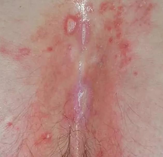 Что это такое генитальный герпес: признаки у мужчин и женщин, лечение и опасность инфекции