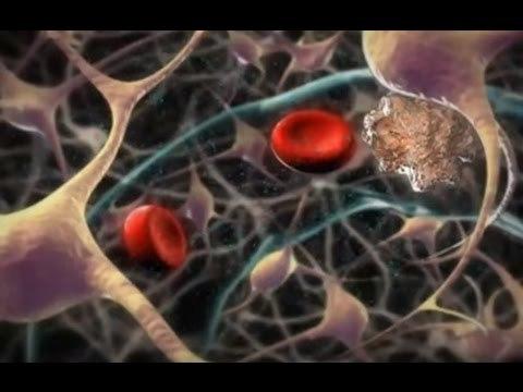 Антифосфолипидный синдром: анализ на антитела, обследования, симптомы и осложнения