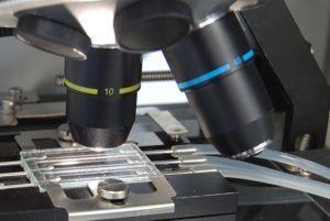 Анализ мочи при месячных: виды, особенности сбора материала и расшифровка результатов исследования