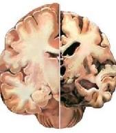 Описание нейродегенеративных заболеваний головного мозга, диагностика и способы лечения