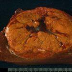 Объемное образование печени: виды, симптомы и лечение