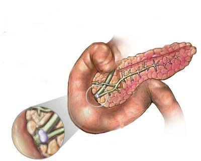 Амилаза панкреатическая в крови: норма, причины повышения, возможные заболевания и последствия