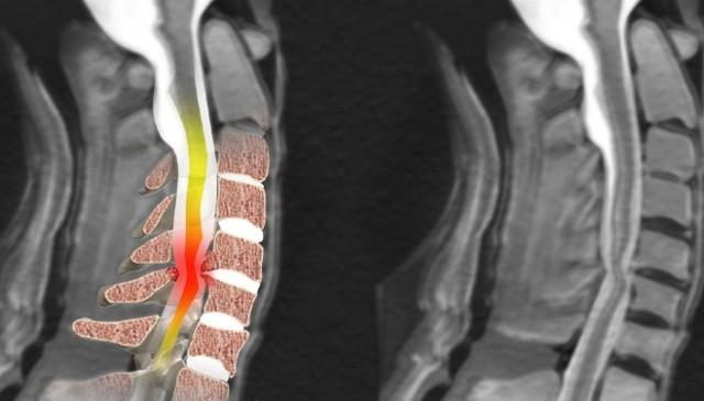 МРТ сосудов шеи с контрастом и без - подготовка, процедура и противопоказания