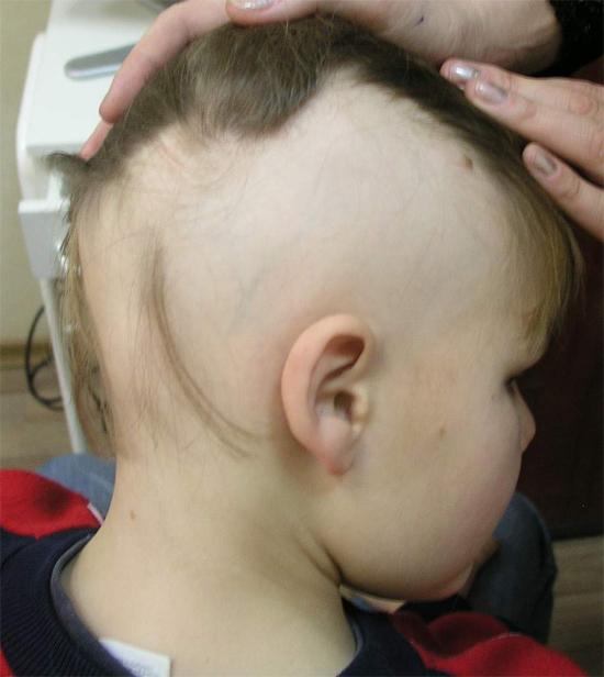 Выпадение волос у детей: причины детской алопеции и как справиться с облысением в детском возрасте