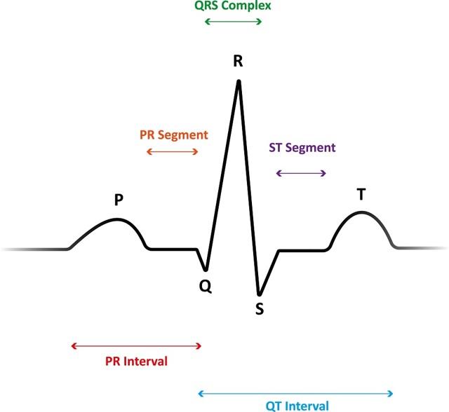 Электрокардиограмма сердца - расшифровка: нормы показателей и возможные заболевания сердца