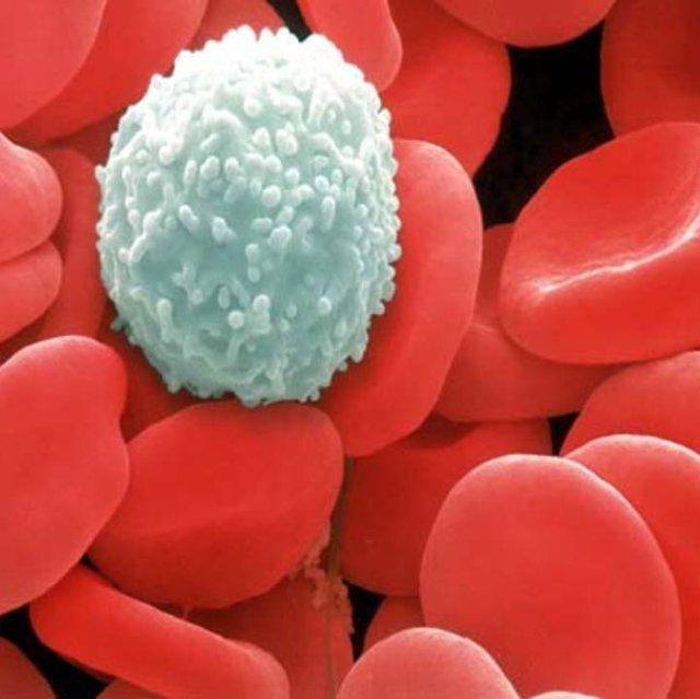 Анализ крови на мочевую кислоту: подготовка, норма и причины повышения показателя