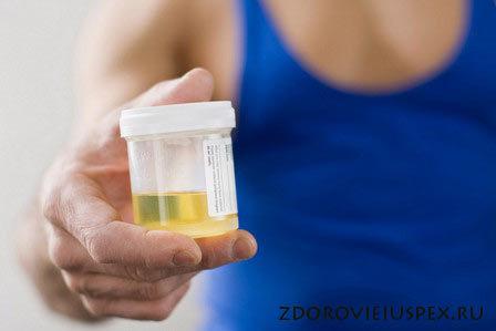 Повышенное содержание лейкоцитов в мазке? – Признак заболевания мочеполовой системы