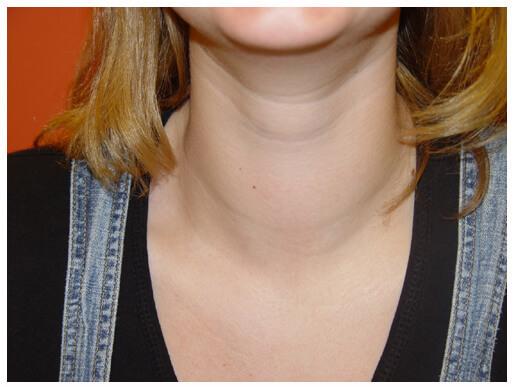 Увеличенная щитовидная железа: признаки, лечение и прогноз