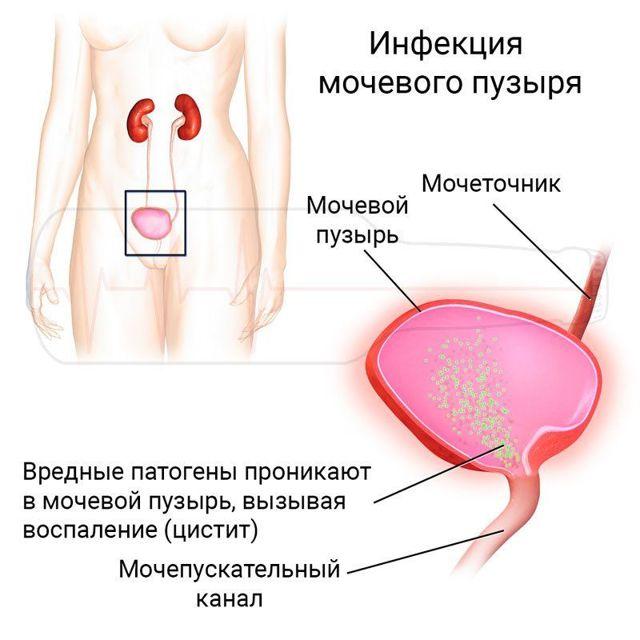 О чем свидетельствует слизь в моче при беременности?