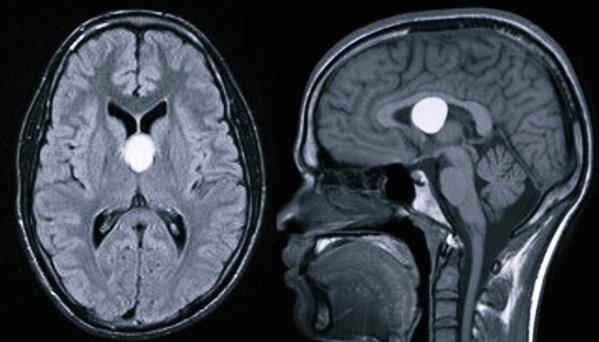 Почему образуется киста в головном мозге у взрослого и каких видов она бывает?