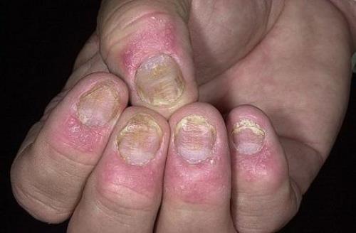 Лечение псориаза ногтей (псориатической ониходистрофии): варианты местной и системной терапии