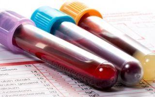 Ревматоидный фактор - что это за показатель и как правильно сдавать кровь на анализ?
