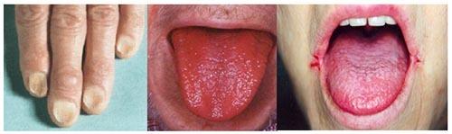 Анемия хронических заболеваний и железодефицитная анемия