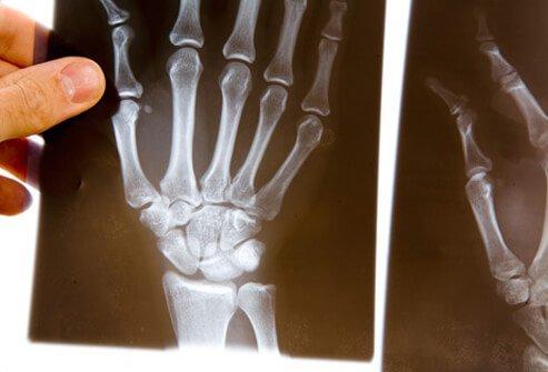 Диагностика и лечение гранулематоза с полиангиитом (гпа)