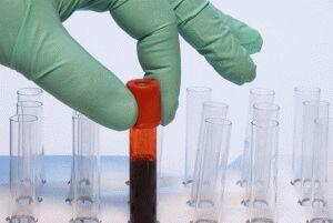 Кровь на РВ сдается натощак: основные рекомендации к подготовке перед анализом