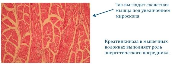 Креатинкиназа повышена: причины и возможные заболевания
