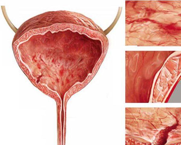 Кровь в моче у женщин при цистите: причины, лечение и осложнения