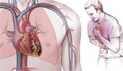 Коронарография сердца: назначение, подготовка, методика обследования и возможные противопоказания