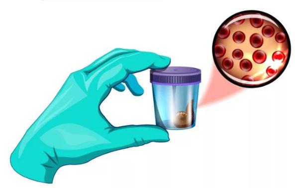 Иммунохимический анализ крови: подготовка и расшифровка основных показателей