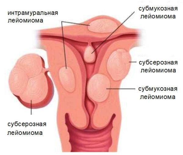 Миома матки интерстициальная форма: причины, признаки и способы лечения патологии