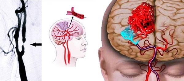 Проблемы с сосудами головного мозга: симптомы и лечение патологии