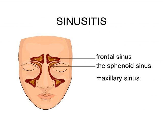 Методика проведения компьютерной томографии пазух носа, назначение и противопоказания