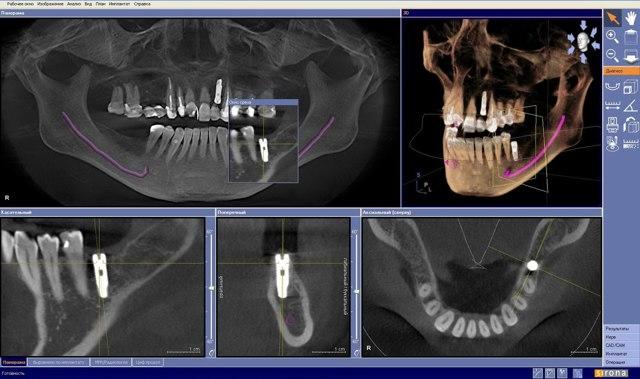 МРТ челюсти: показания, процедура, противопоказания