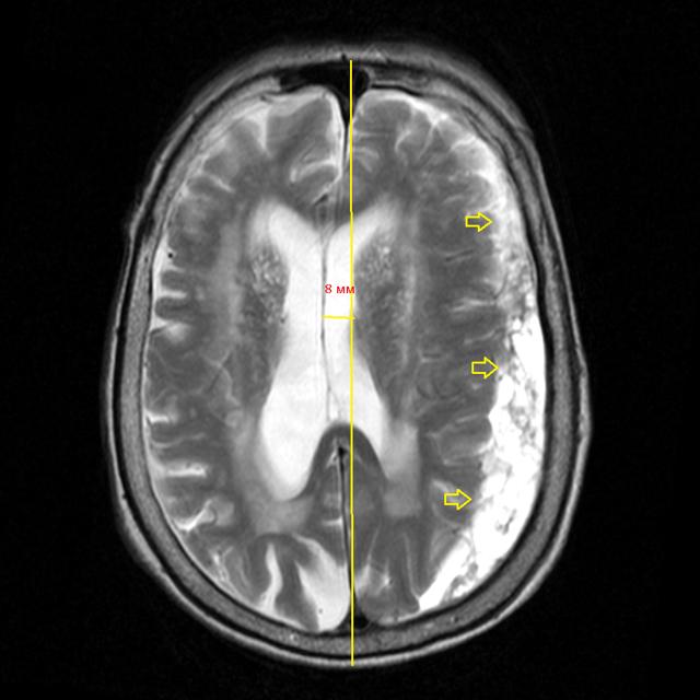 Заключение МРТ головного мозга: норма и возможные заболевания