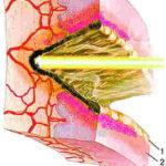 Кровоточит шейка матки: причины кровянистых выделений, лечение и возможные осложнения
