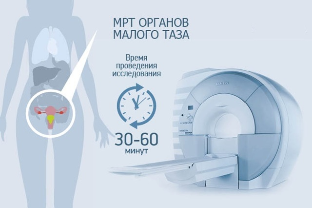 МРТ малого таза с контрастом у мужчин и женщин - все о диагностике