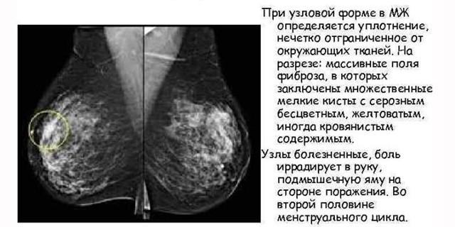 Диффузная фиброзно-кистозная мастопатия: медикаментозное, народное и хирургическое лечение