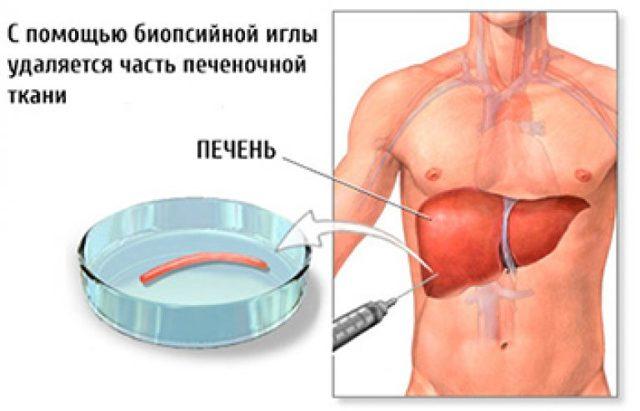 Хронический криптогенный гепатит - признаки, формы, стадии и особенности лечения патологии