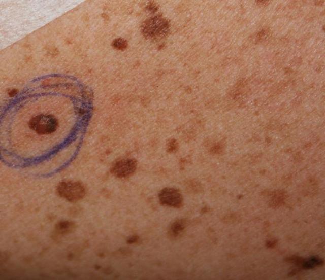 Пигментный пограничный невус: признаки, диагностика и удаление